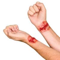 Woochie Slached Wrist